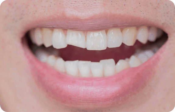 Broken and Chipped tooth at Aardent Dental Centre