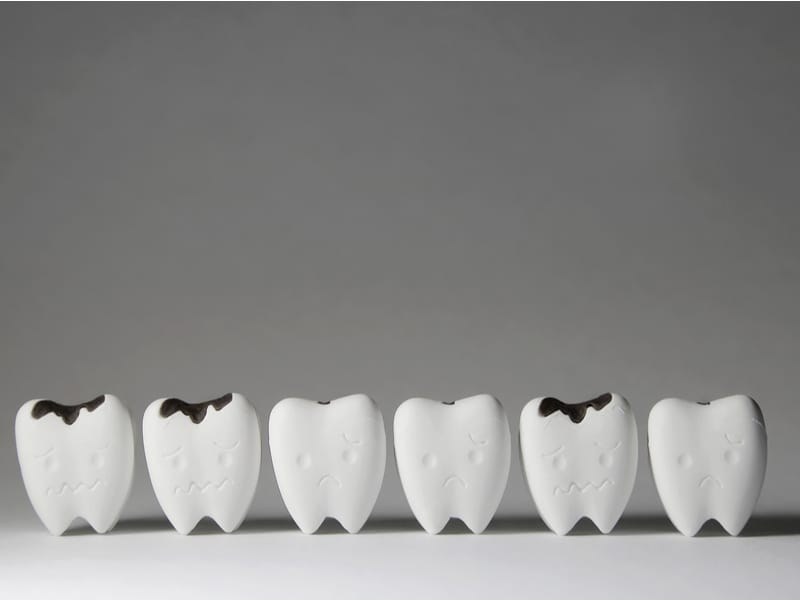 Dentist Advice on How to Prevent Tooth Decay