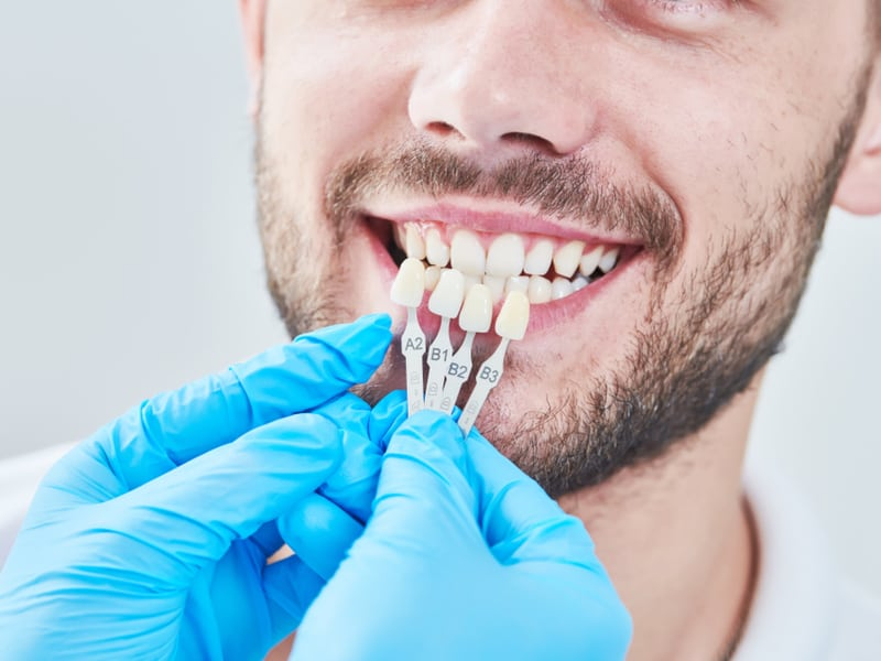 What are the Different Types of Veneers Available?